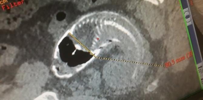 La tilapia habría perforado parte del intestino grueso del hombre.