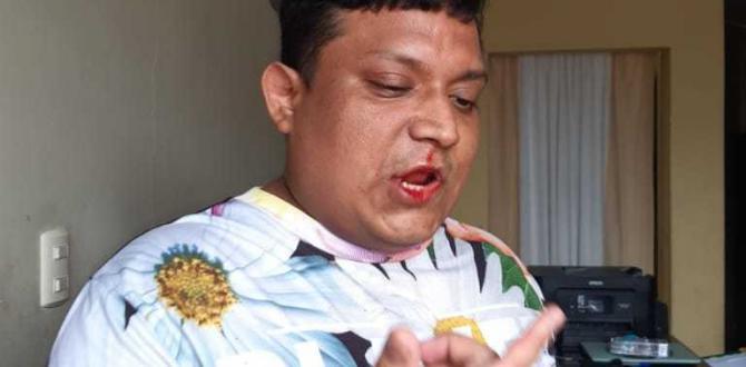 Vicente Barahona mostró como quedó su rostro luego de la supuesta agresión del jugador.