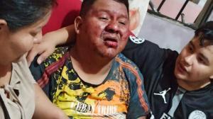 El día de la agresión así encontraron a Italo Sabino Cruz Macías.