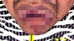 Ítalo Cruz Matías perdió parte de su lengua. También presenta heridas en sus manos.