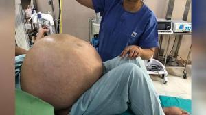 tumor-gigante-ovario-india-kilos