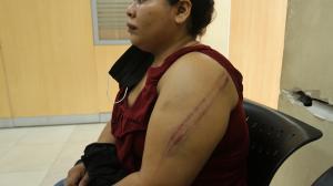 Por los latigazos, estas marcas quedaron en el cuerpo de la mujer.