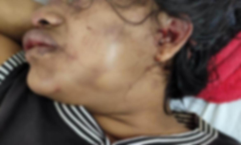La mujer ingresó en estado crítico al hospital Vicente Pino Morán de Daule.