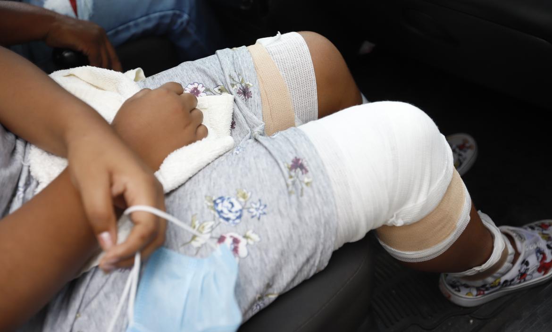 Los médicos suturaron las heridas provocadas por las mordeduras de la mascota.