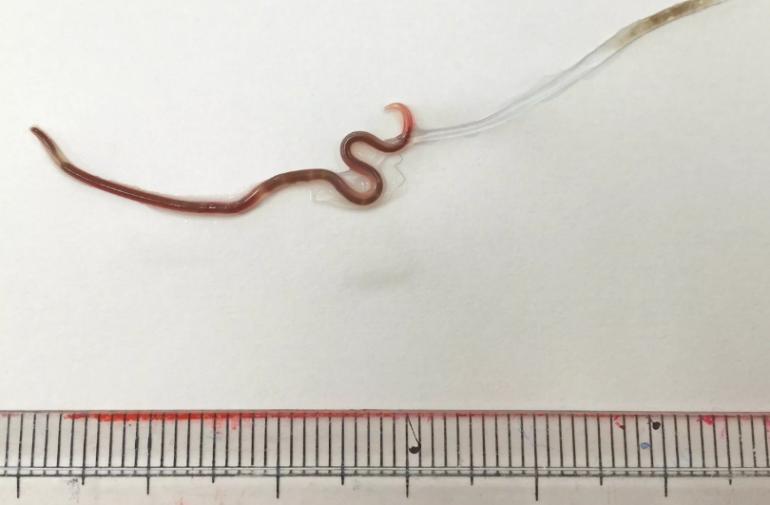 El gusano 'Pseudoterranova azarasi' mudando la cutícula externa.